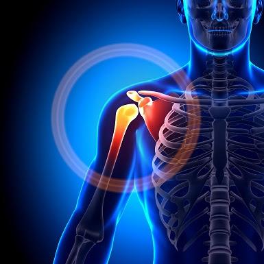 arthrosocpic shoulder surgery in chennai