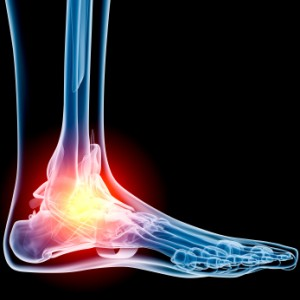 ankle joint pain treatment in chennai